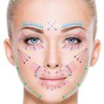 Филлеры для кожи лица: плюсы и минусы дермальных филлеров